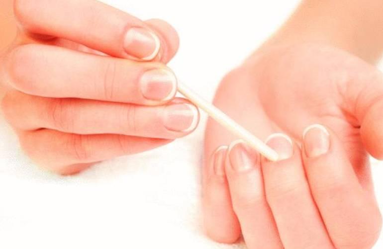 10 astuces pour soigner la peau dure et sèche autour de l'ongle