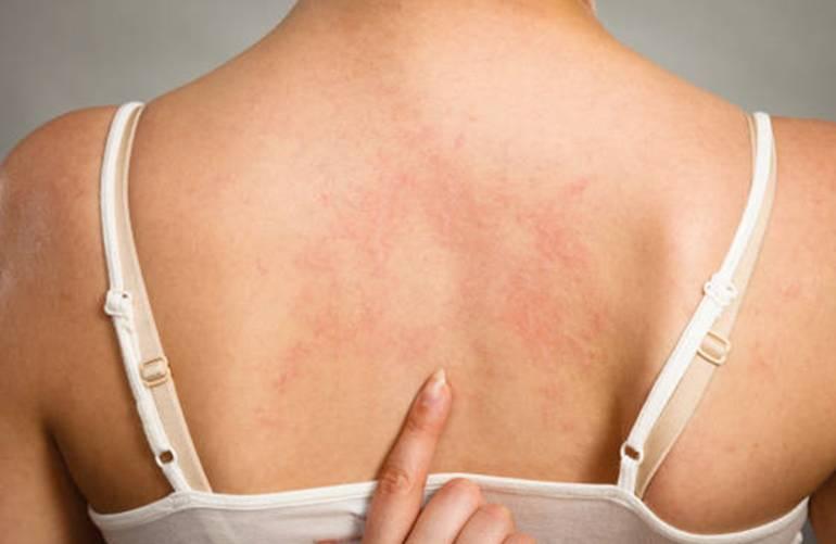 20 remèdes pour calmer la peau irritée