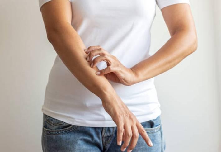 comment traiter les irritations de la peau sans médicament