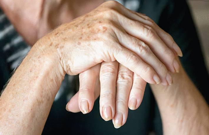 comment effacer les taches sur les mains