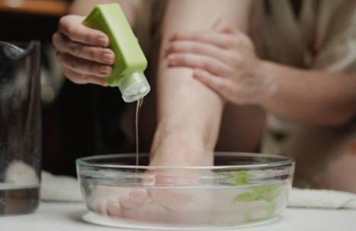 comment traiter naturellement la mycose ongles