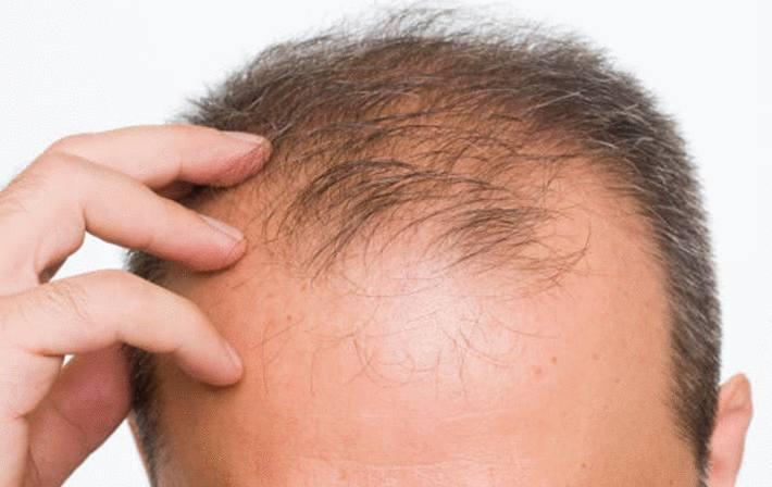 comment stopper cheveux qui tombent