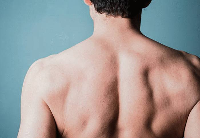comment traiter les boutons dans le dos