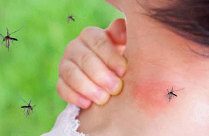 meilleure astuce anti moustique