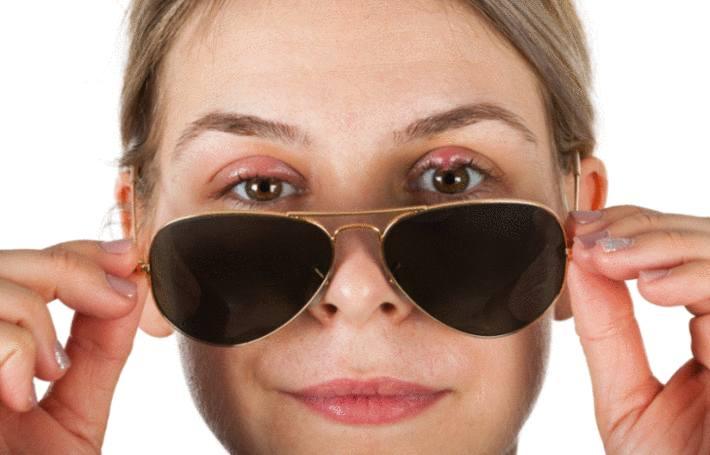 une femme retire ses lunettes et montre une paupiere avec un orgelet