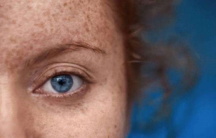 femme dont le visage est couvert de taches de rousseur