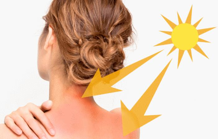 urticaire, dermatite, lucite : allergie au soleil
