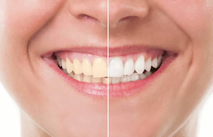 comment avoir un beau sourire