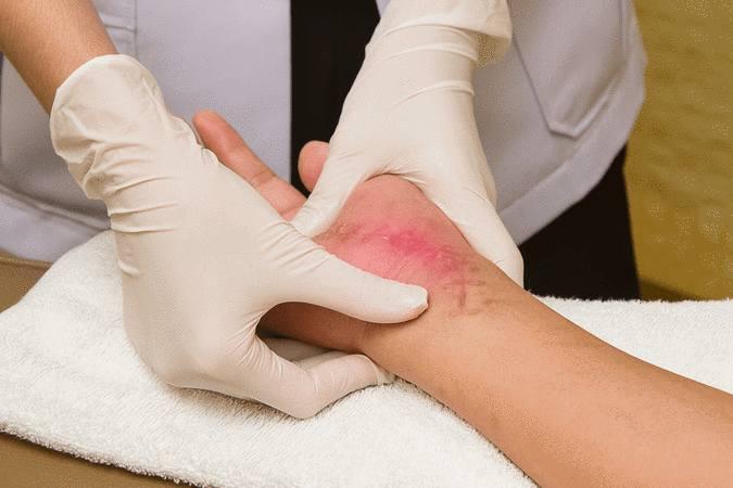soigner une cicatrice pour cicatriser sans problème
