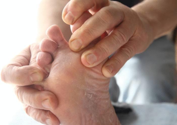 mycose des pieds