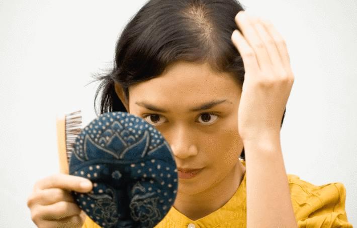 cheveux qui tombent, lutter contre calvitie