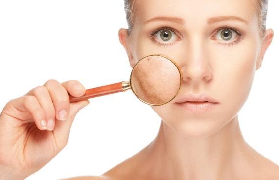 recette naturelle pour effacer tache sur la peau